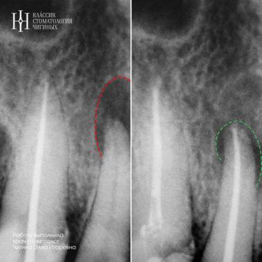 Лечение периодонтита временной обтурацией кальцием (второй снимок через месяц после лечения)